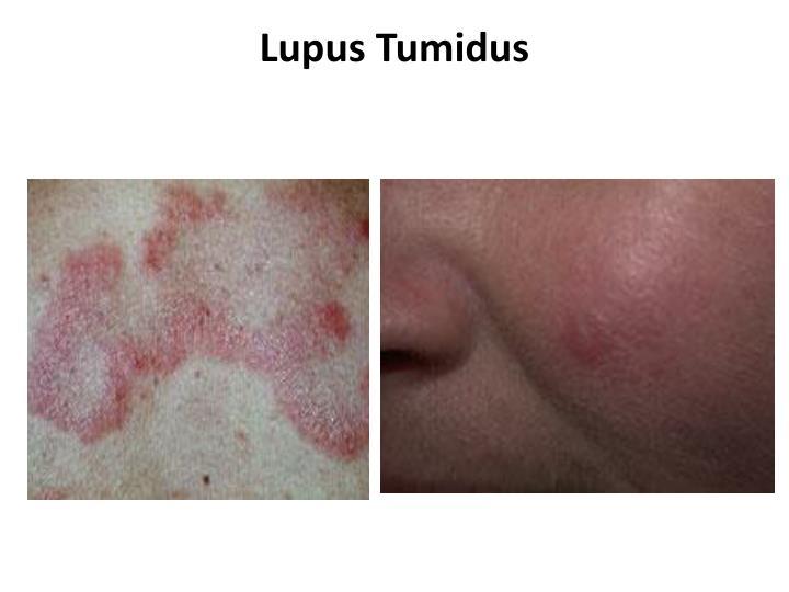 Lupus Tumidus