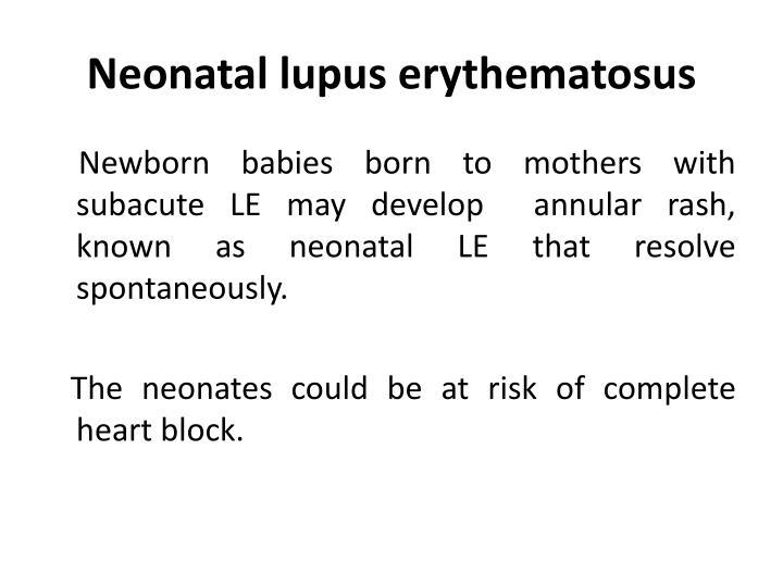 Neonatal lupus erythematosus