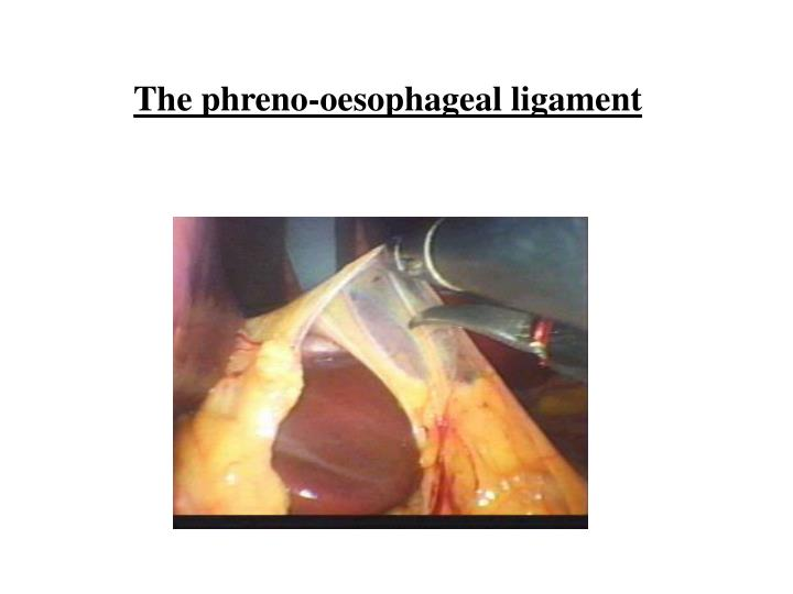 The phreno-oesophageal ligament