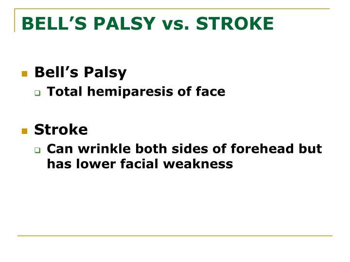 BELL'S PALSY vs. STROKE