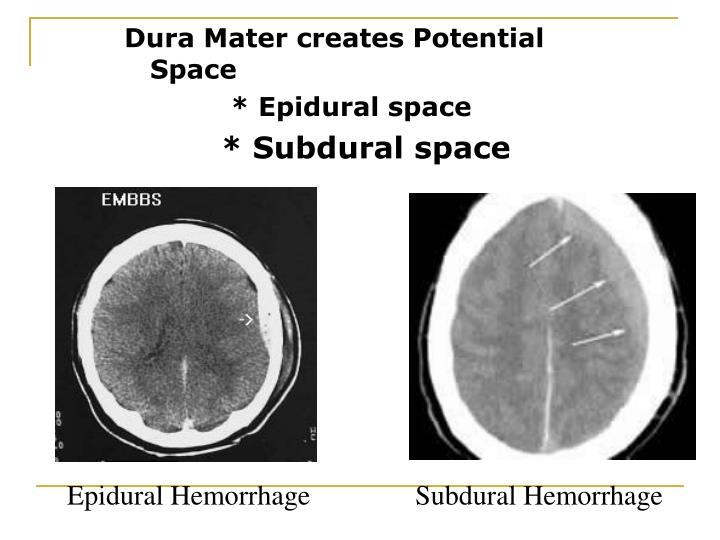 Dura Mater creates Potential Space