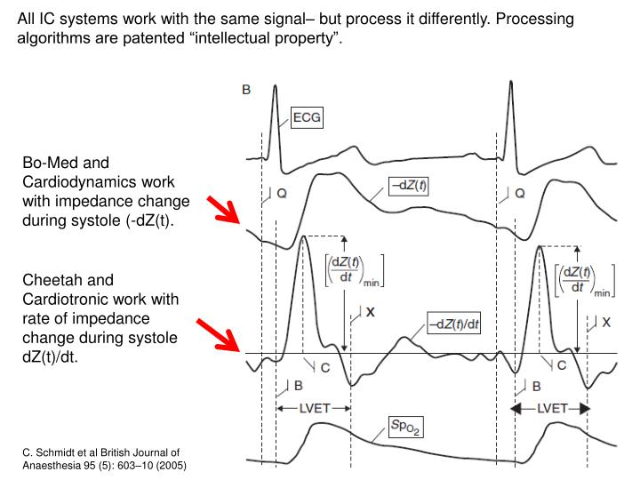 """All IC systems work with the same signal– but process it differently. Processing algorithms are patented """"intellectual property""""."""
