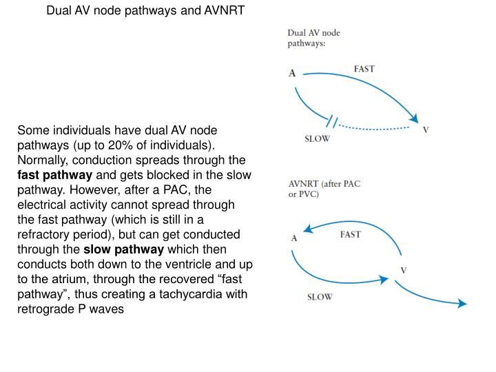 Dual AV node pathways and AVNRT