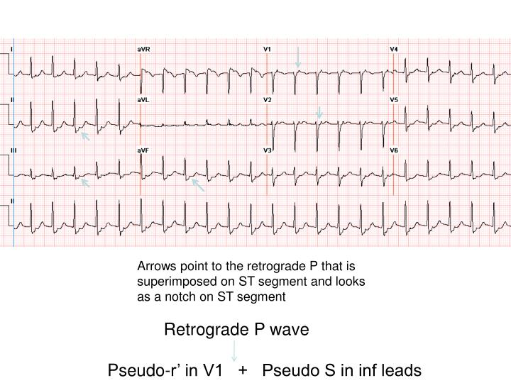 Arrows point to the retrograde P that is superimposed on ST segment and looks as a notch on ST segment
