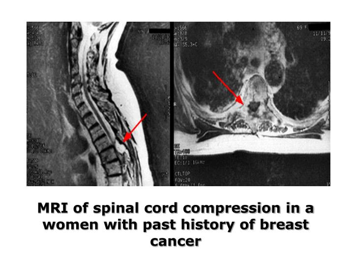 MRI of spinal cord compression in a women with past history of breast cancer