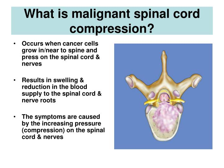 What is malignant spinal cord compression?