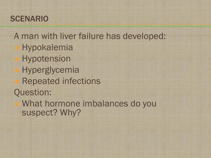 A man with liver failure has developed:
