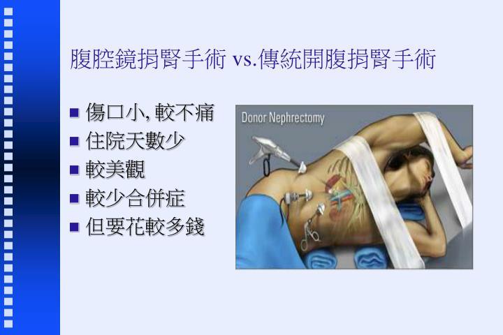 腹腔鏡捐腎手術