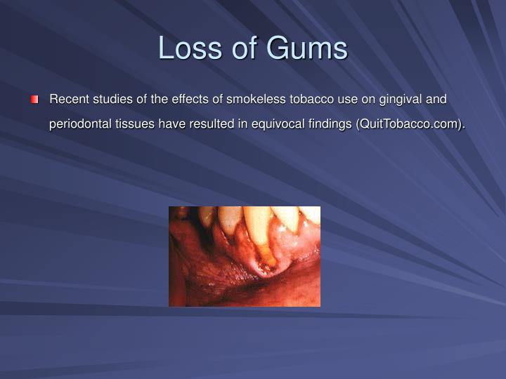 Loss of Gums