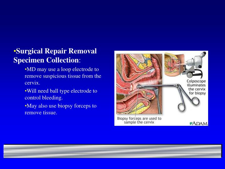 Surgical Repair Removal Specimen Collection