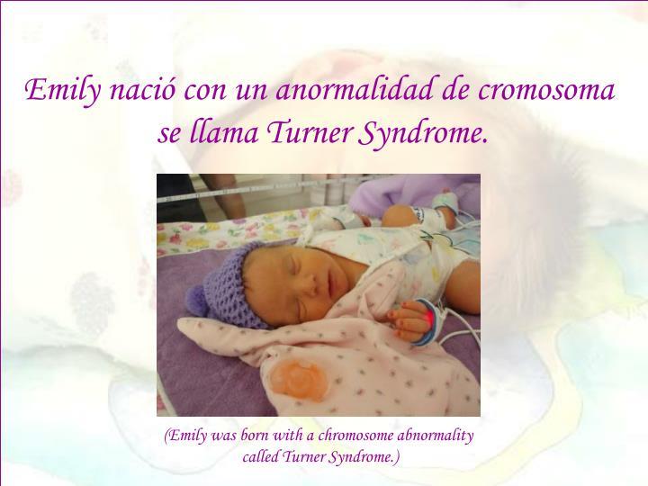 Emily nació con un anormalidad de cromosoma