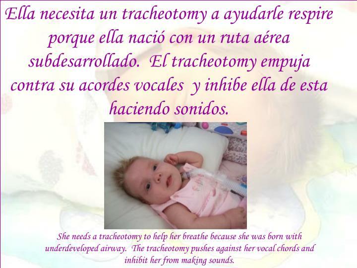 Ella necesita un tracheotomy a ayudarle respire porque ella nació con un ruta aérea subdesarrollado.  El tracheotomy empuja contra su acordes vocales  y inhibe ella de esta haciendo sonidos.