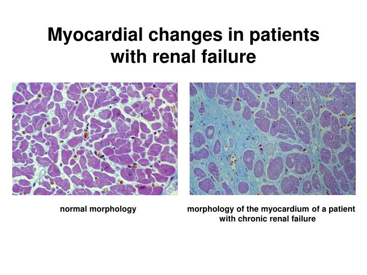 Myocardial changes in patients with renal failure