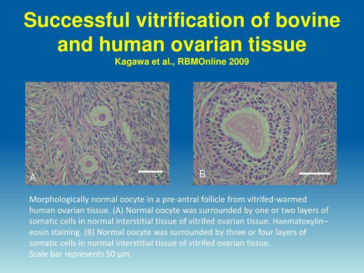 Successful vitrification of bovine and human ovarian tissue