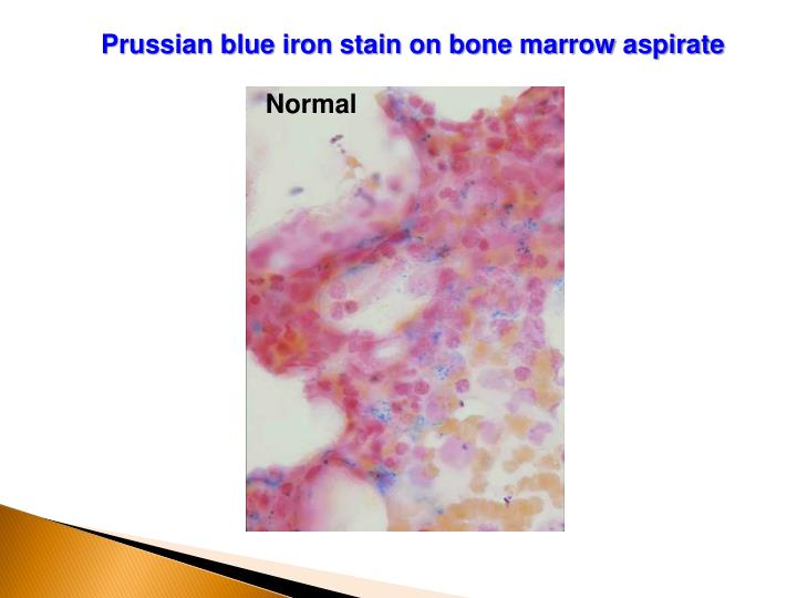 ppt - sideroblastic anemias powerpoint presentation