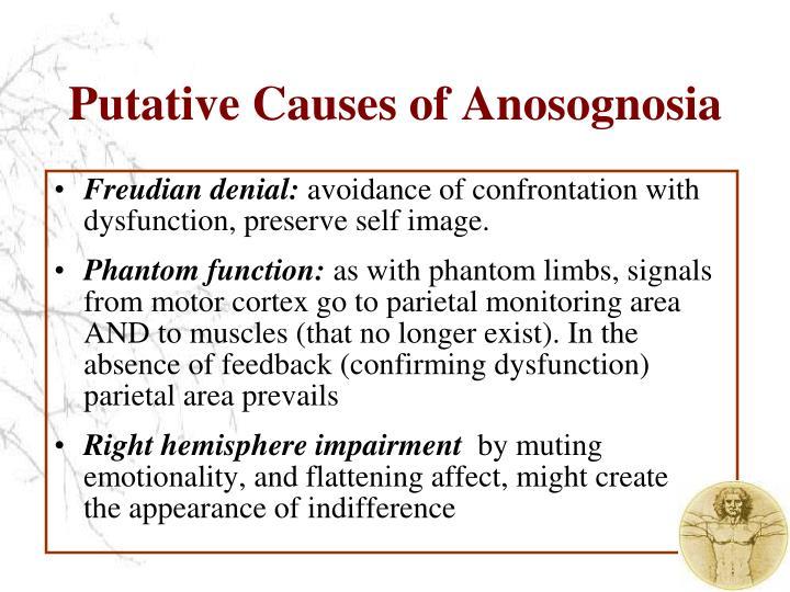 Putative Causes of Anosognosia