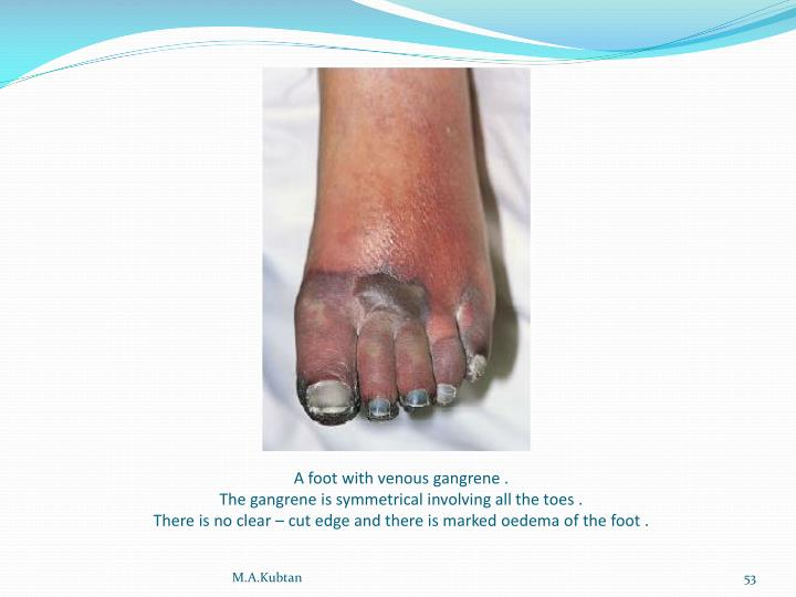 A foot with venous gangrene .