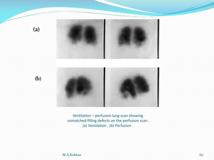 Ventilation – perfusion lung scan showing