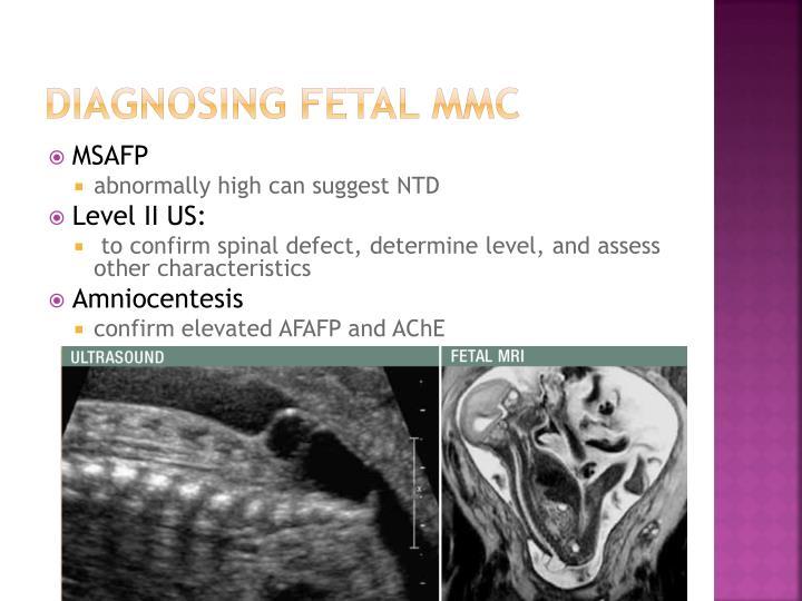 Diagnosing Fetal mmc