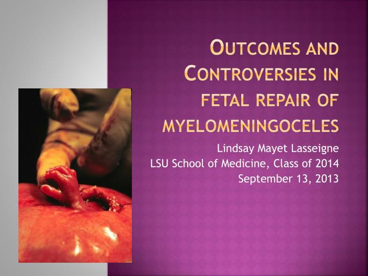 Outcomes and controversies in fetal repair of myelomeningoceles
