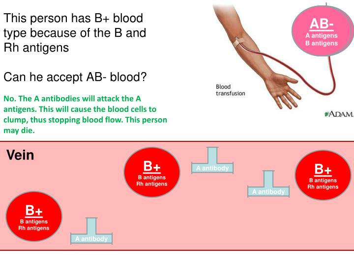 how did the appearance of the a b and rh samples for the patient with ab_ blood type Having the presence of a and b antigens and the absence of the rh antigen, ab negative blood type can ab negative blood of appearancein rh- oaba2.