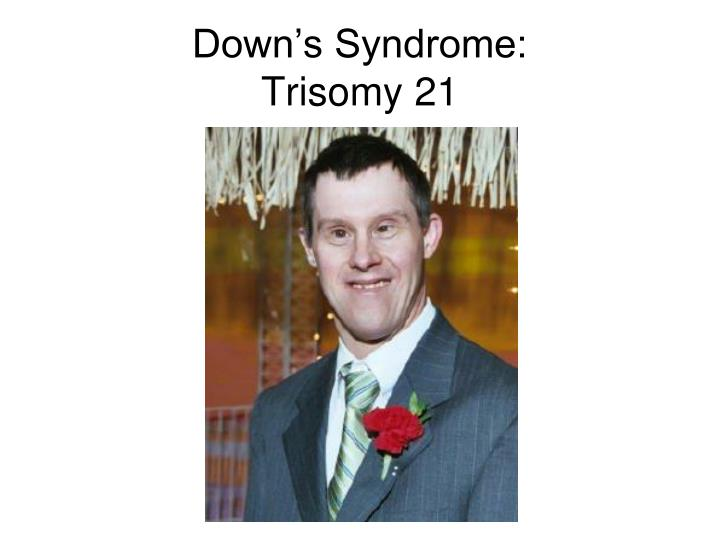 Down's Syndrome: