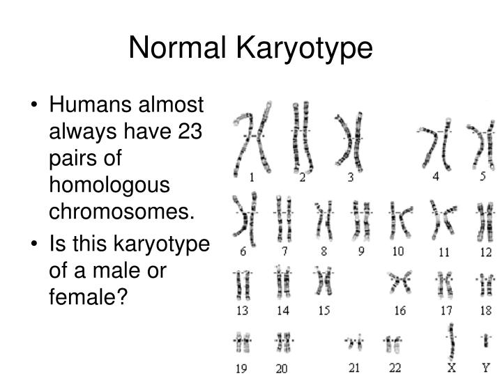 Normal Karyotype