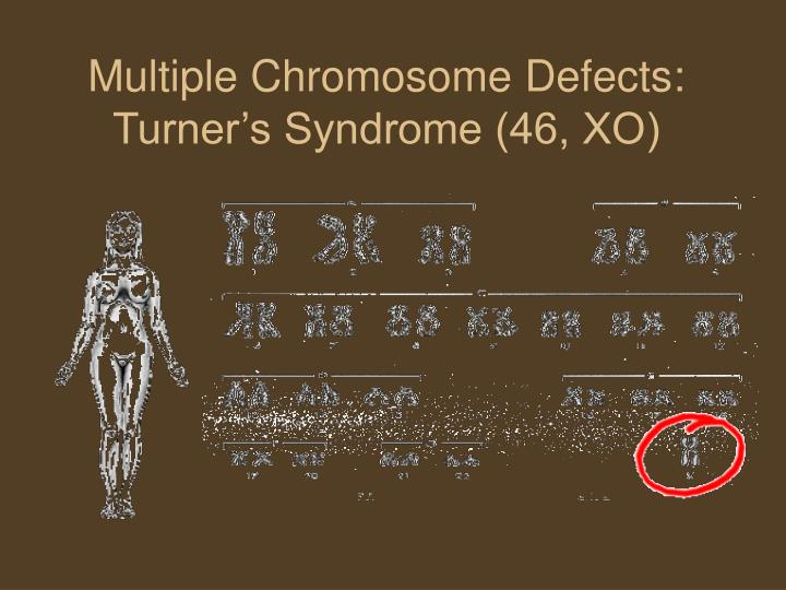Multiple Chromosome Defects: Turner's Syndrome (46, XO)