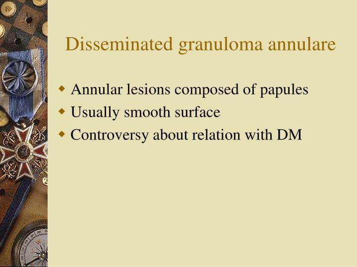 Disseminated granuloma annulare
