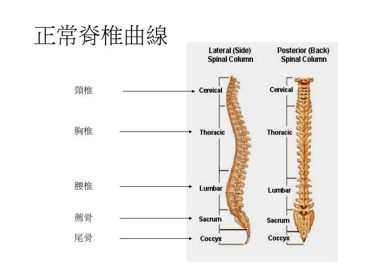 正常脊椎曲線