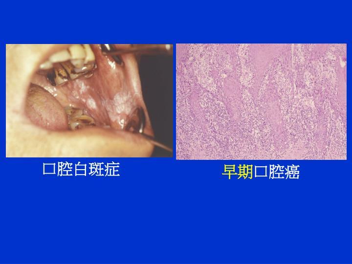 口腔白斑症