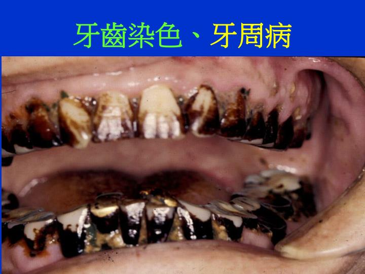 牙齒染色、