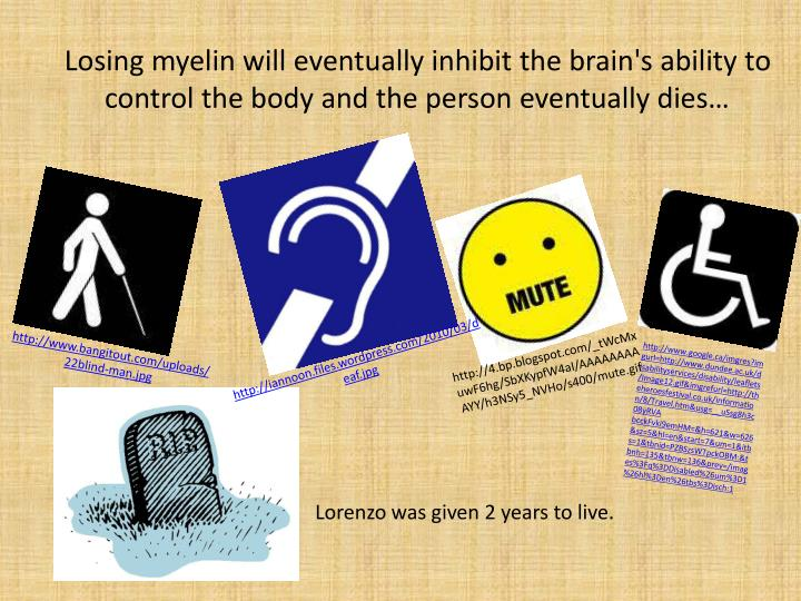 Losing myelin will eventually inhibit the brain's ability to control the body and the person eventually dies…