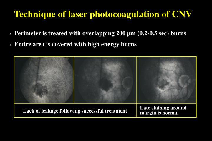 Technique of laser photocoagulation of CNV