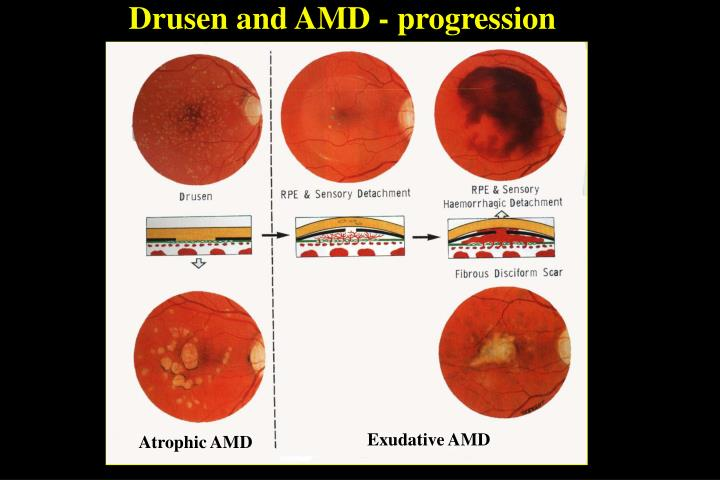 Drusen and AMD - progression