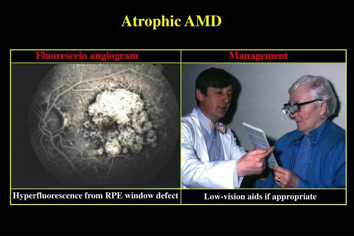 Atrophic AMD
