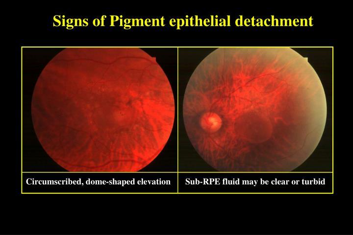 Signs of Pigment epithelial detachment