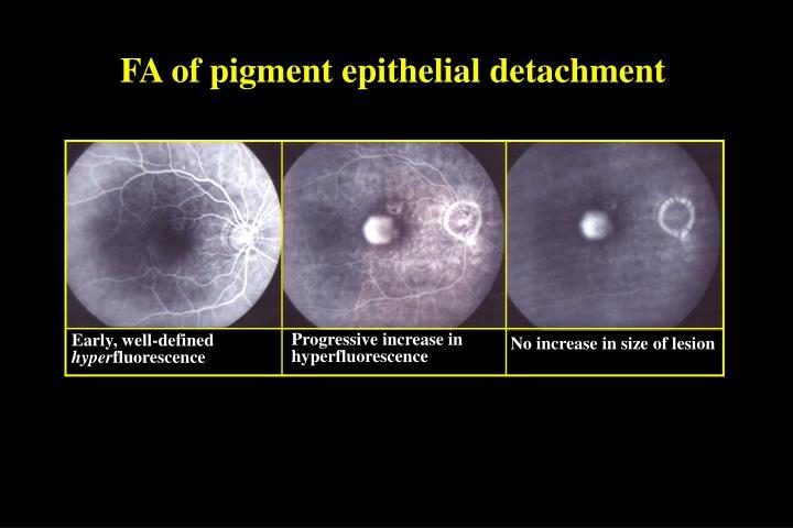 FA of pigment epithelial detachment