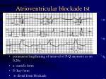 atrioventricular blockade st