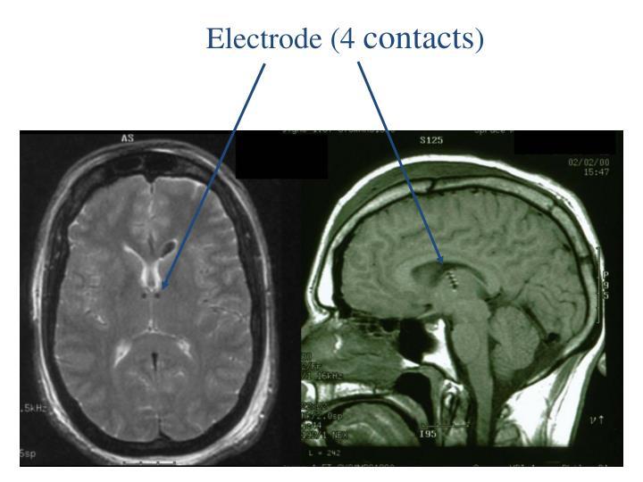 Electrode (4