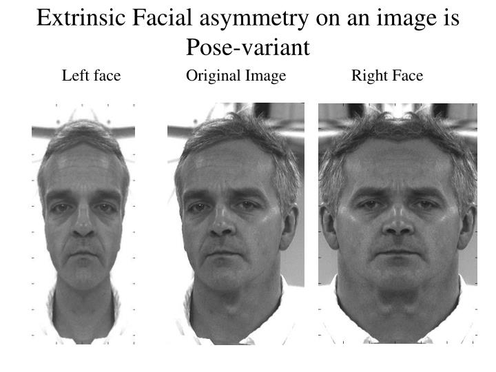 Extrinsic Facial asymmetry on an image is