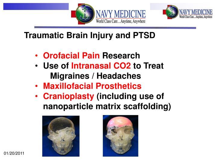 Traumatic Brain Injury and PTSD
