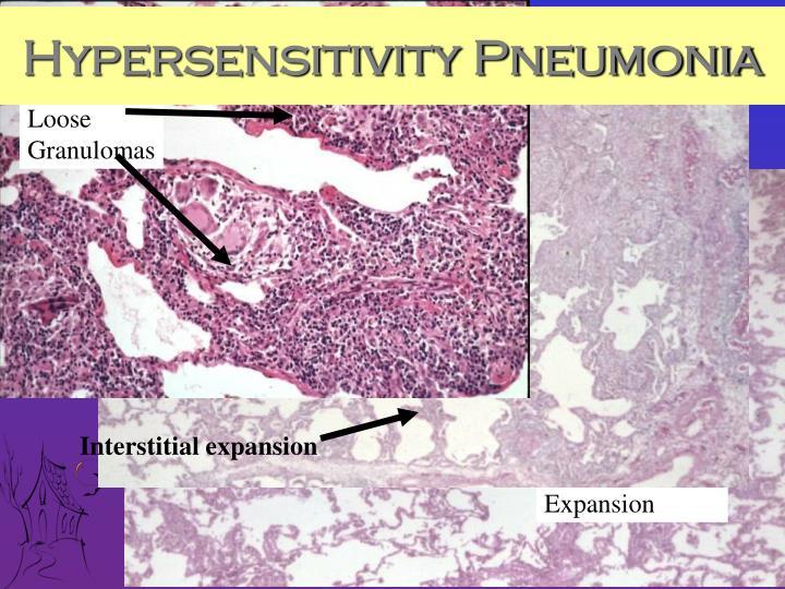 Hypersensitivity Pneumonia