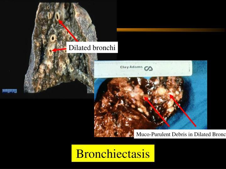 Dilated bronchi