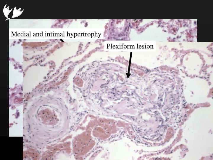 Plexiform lesion