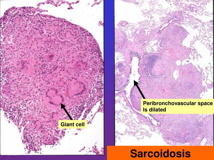 Peribronchovascular space