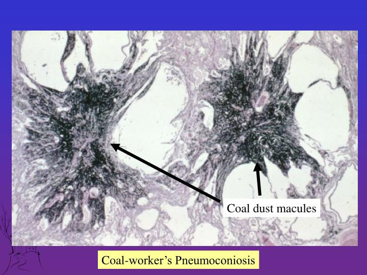 Coal dust macules
