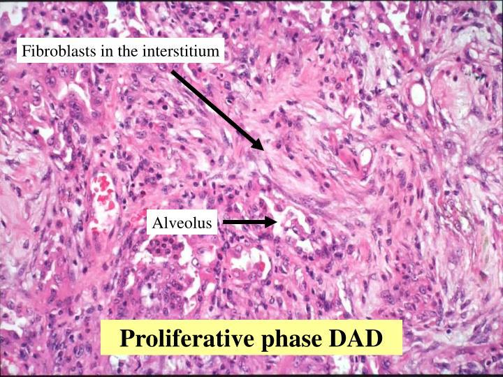 Fibroblasts in the interstitium