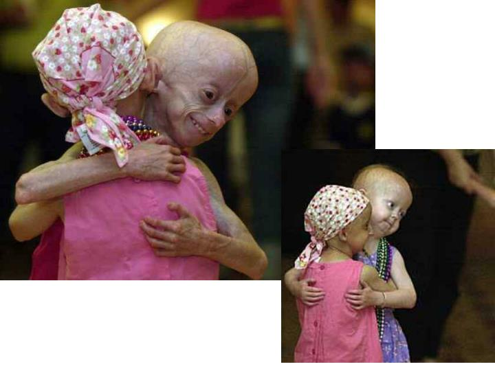 Progeria hutchinson guilford syndrome onset of symptoms generally 6 24 months