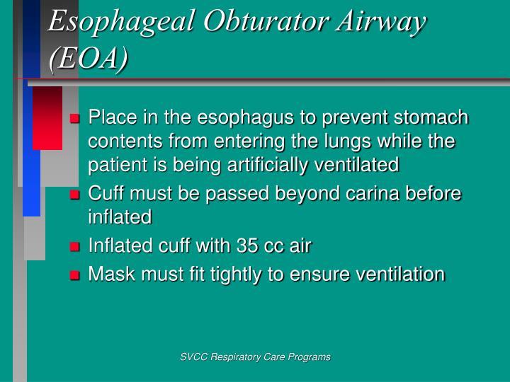 Esophageal Obturator Airway